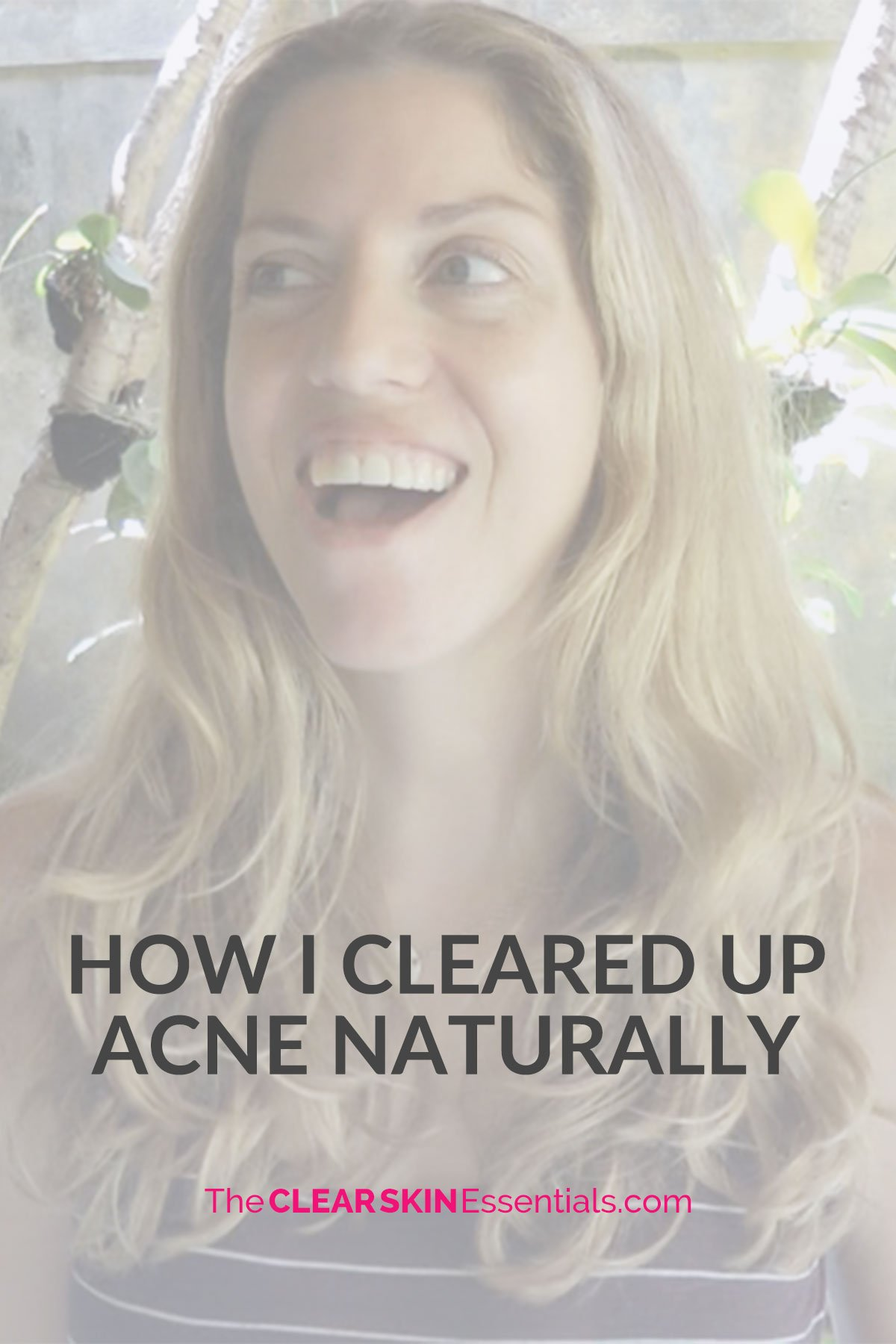 Natasha St. Michael story how she cleared up adult acne through her diet and skincare routine.