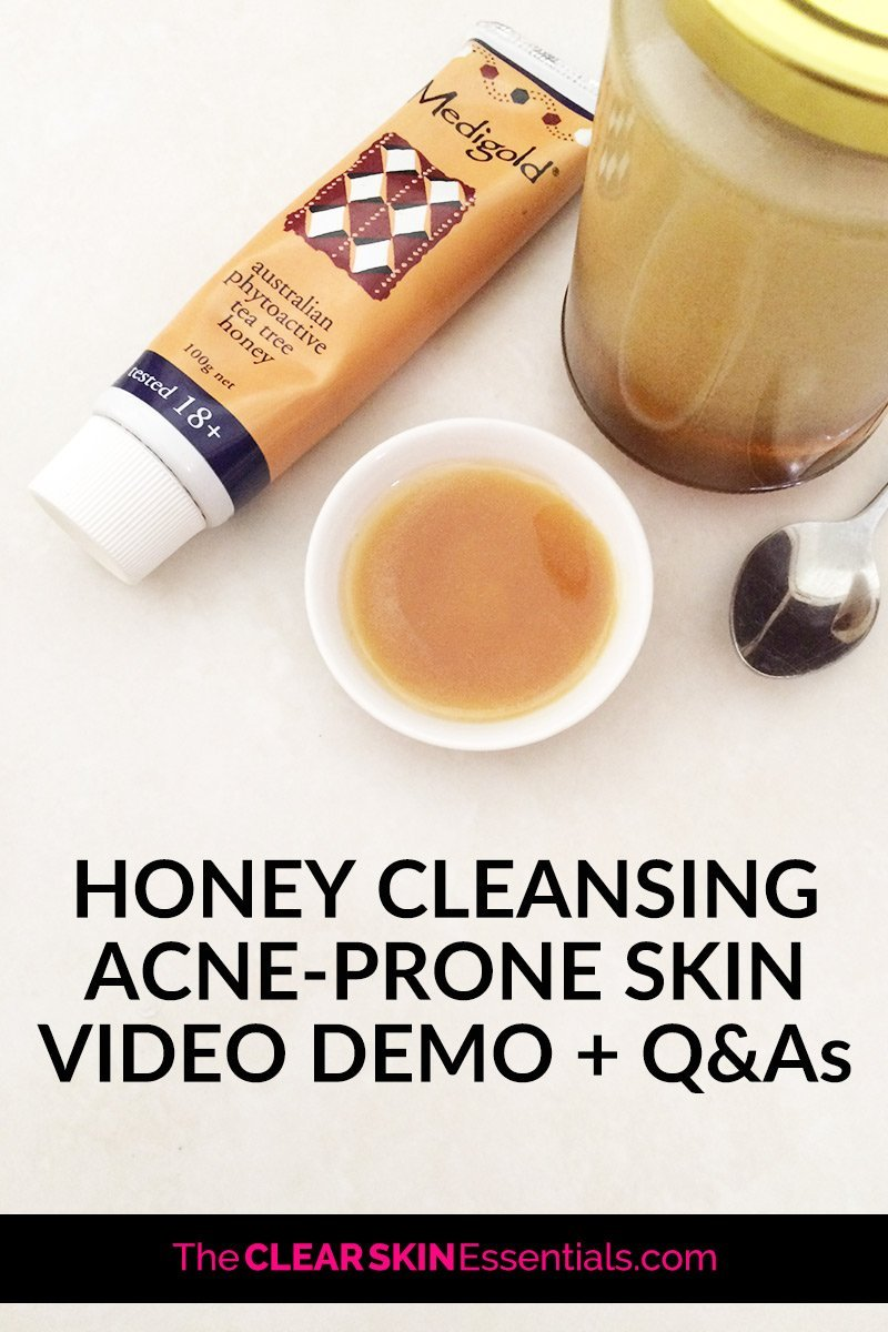 How to wash your face with honey for acne prone skin.