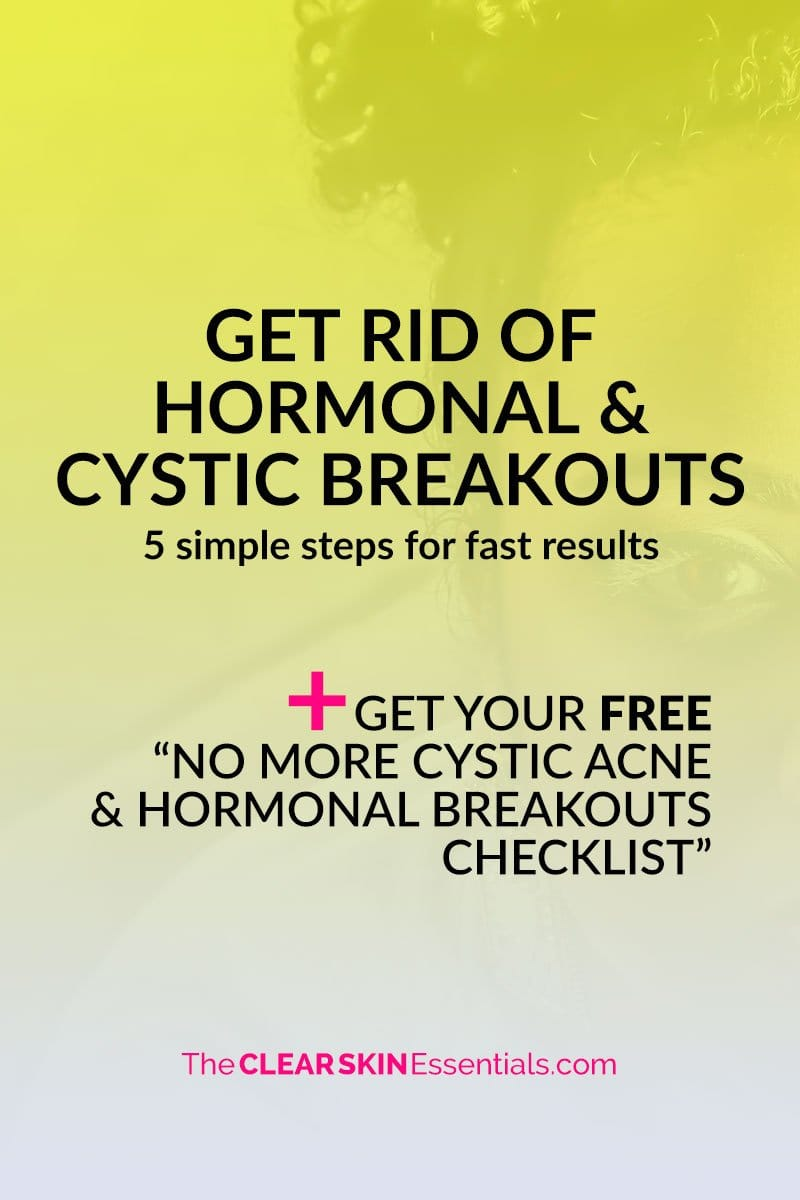 5 simple steps to get rid of hormonal and cystic acne breakouts.