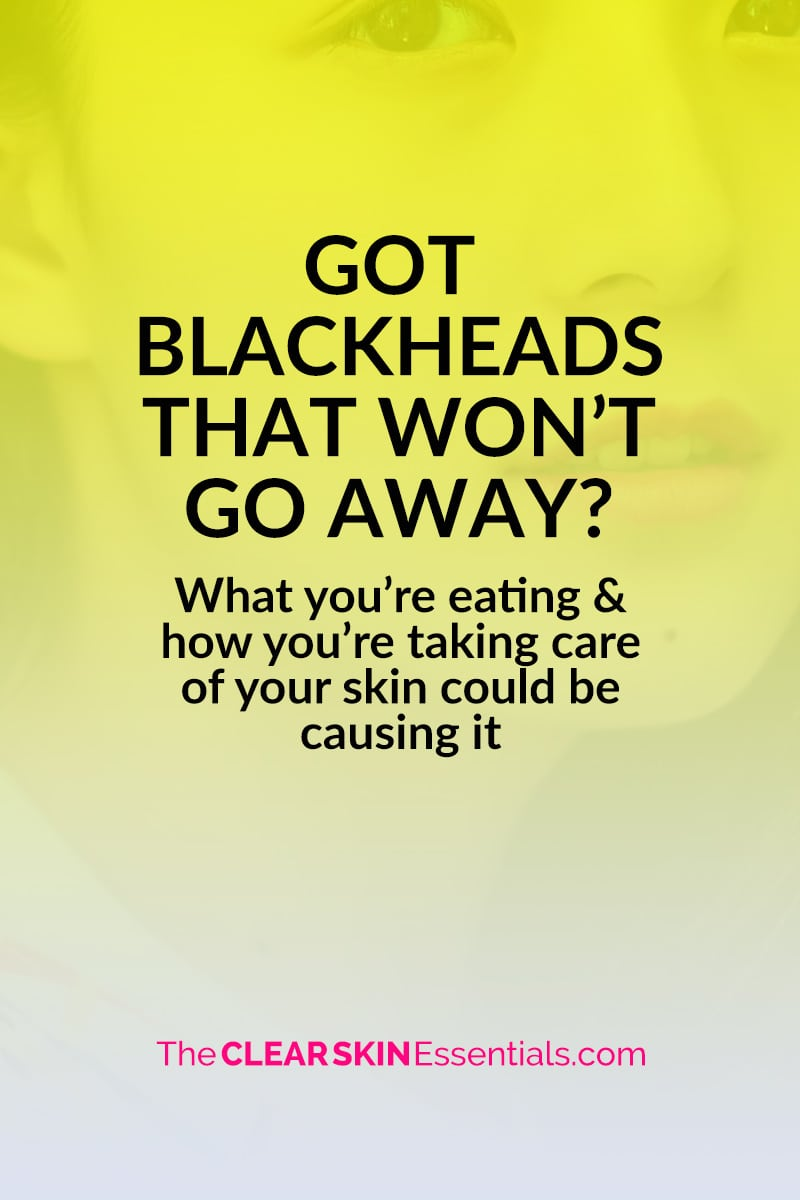 How to get rid of blackheads with your diet and skincare routine.