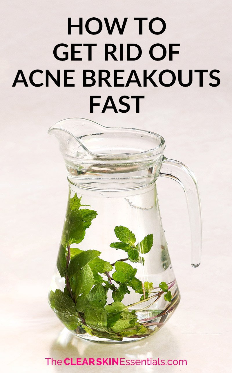 How to get rid of acne breakouts fast with your diet and skincare.