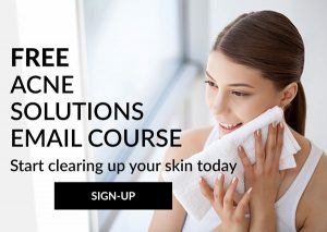 Sign-up for the free Acne Solutions Email Course to learn how to get rid of acne and breakouts naturally through diet and skincare.