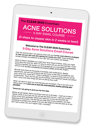 Sign-up for the Acne Solutions 5-Day Email Course, it's FREE (and it works!).