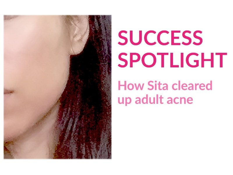 Sita tells her story how she cleared up stubborn adult acne