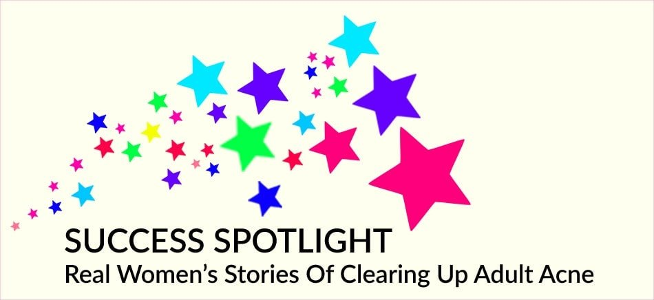 Real women's stories of clearing up adult acne